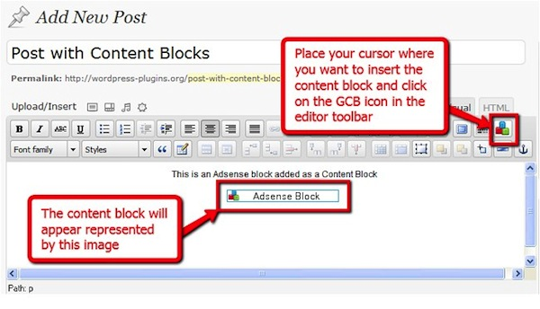 Global Content Blocks screenshot.